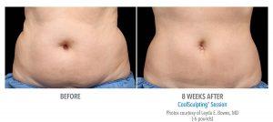 Fat Reduction of Female Abdomen
