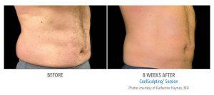 Fat Reduction of Abdomen