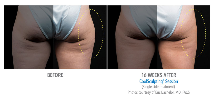 Fat Reduction of Outer Thighs