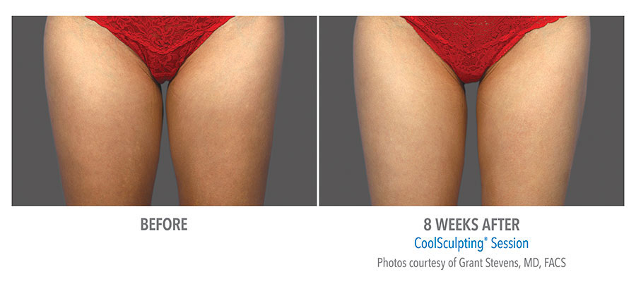 Fat Reduction of Inner Thighs