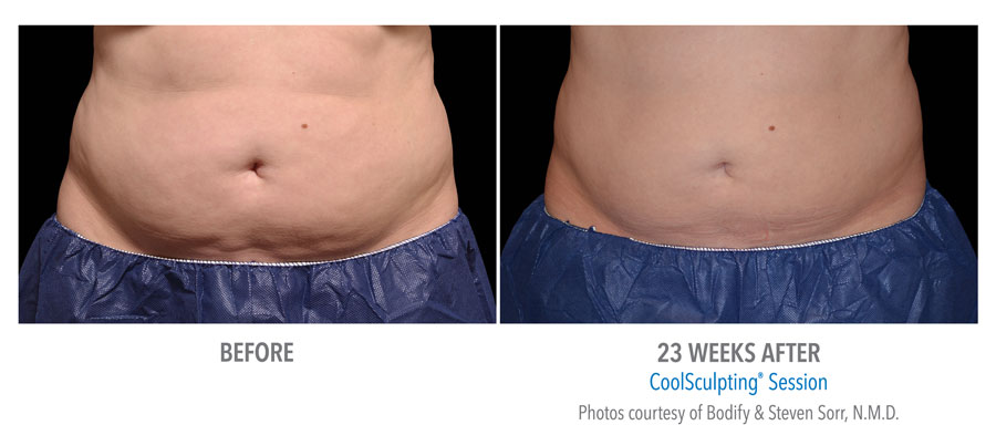 Fat Reduction of Stomach