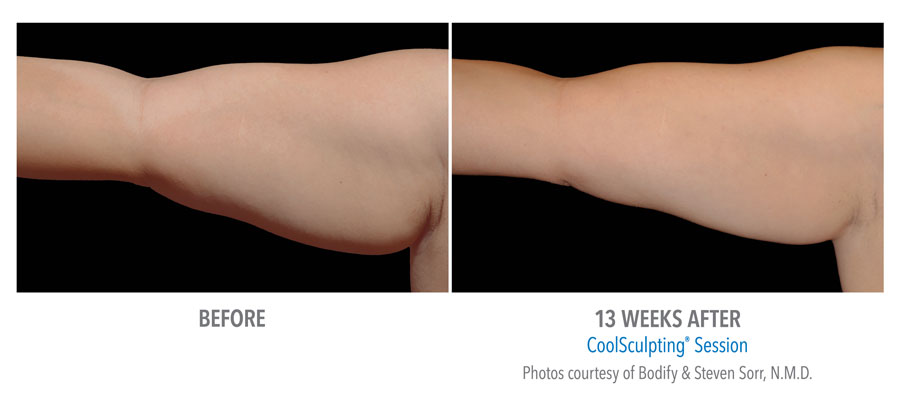 Fat Reduction of Arms