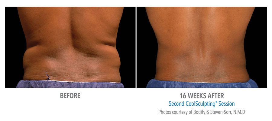 Fat Reduction of Flanks