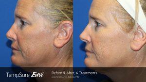 Facial Wrinkles Reduction by TempSure Envi
