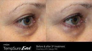 Facial Lines Reduction by TempSure Envi